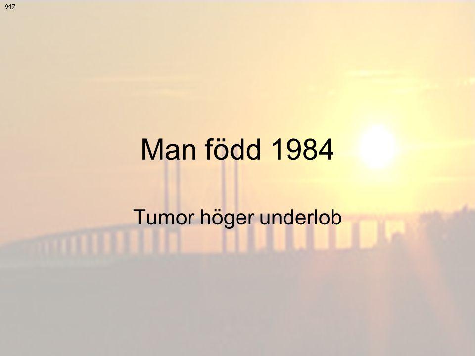 947 Man född 1984 Tumor höger underlob