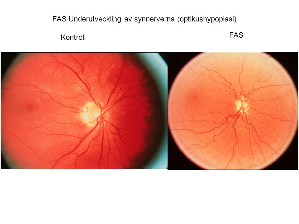 FAS Underutveckling av synnerverna (optikushypoplasi)
