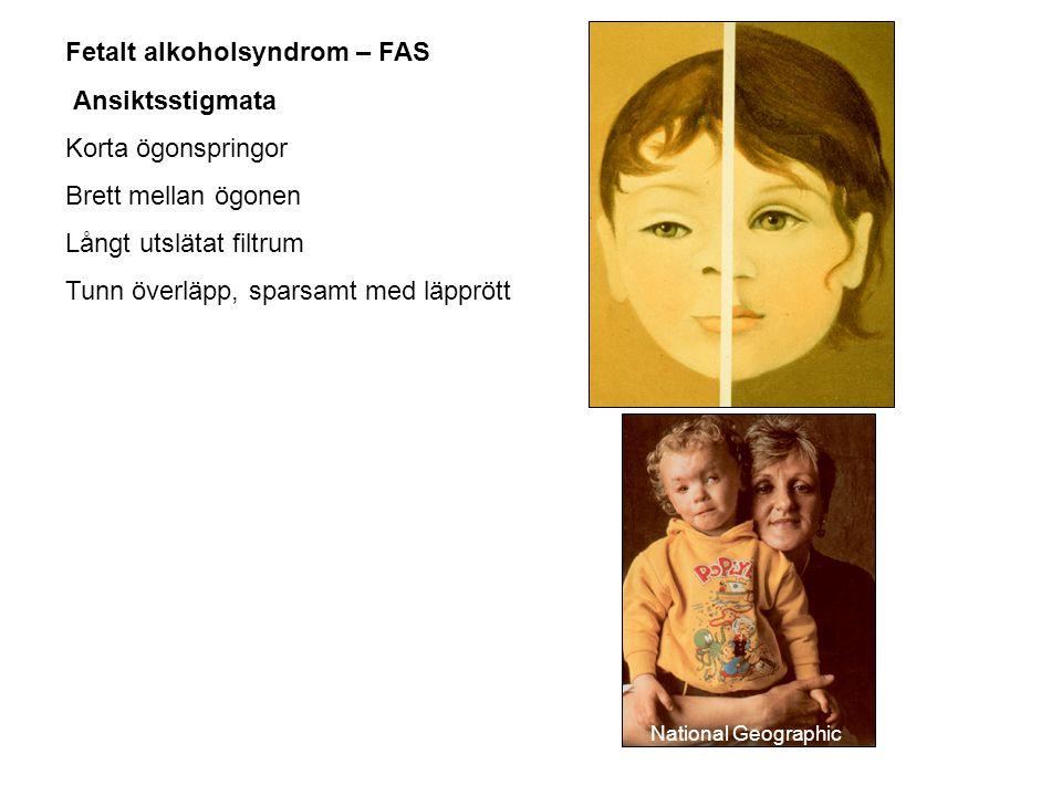 Fetalt alkoholsyndrom – FAS Ansiktsstigmata Korta ögonspringor