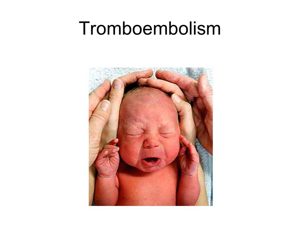 Tromboembolism