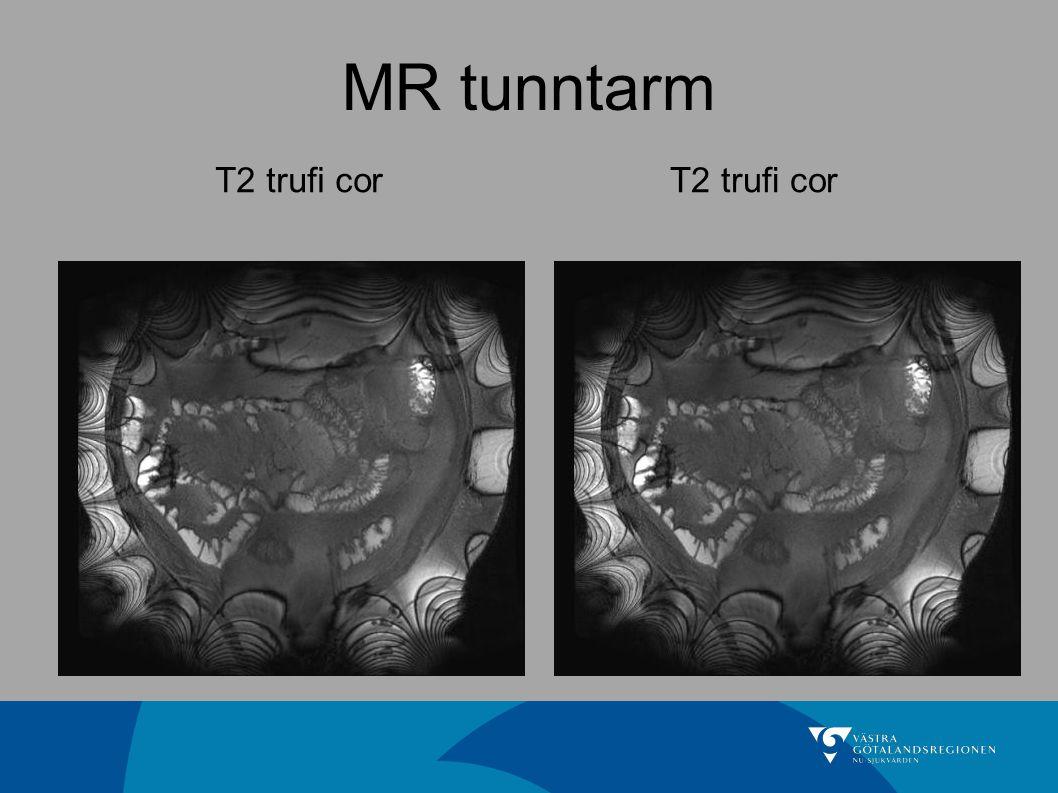 MR tunntarm T2 trufi cor T2 trufi cor Invikningsartefakter…
