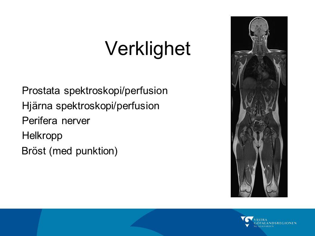 Verklighet Prostata spektroskopi/perfusion