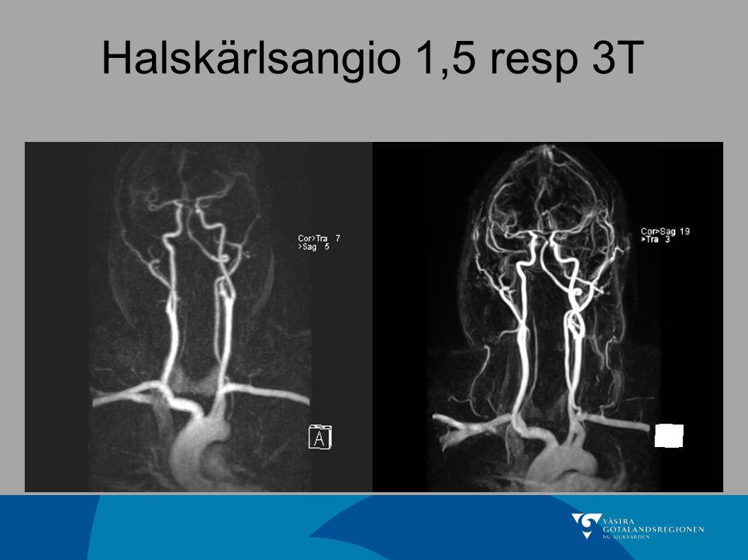 Halskärlsangio 1,5 resp 3T 76