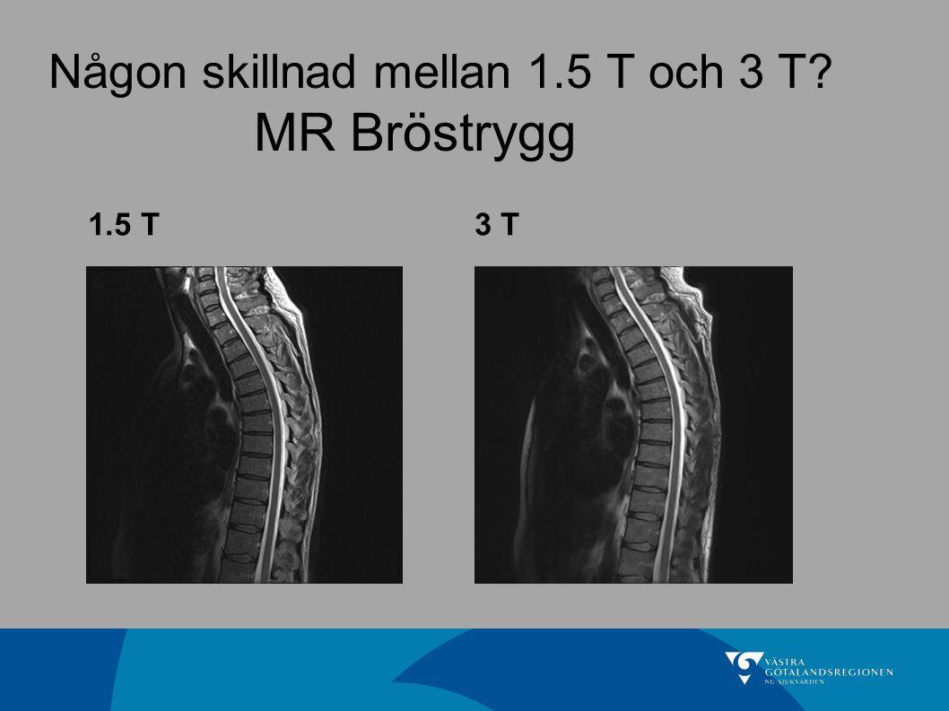 Någon skillnad mellan 1.5 T och 3 T MR Bröstrygg