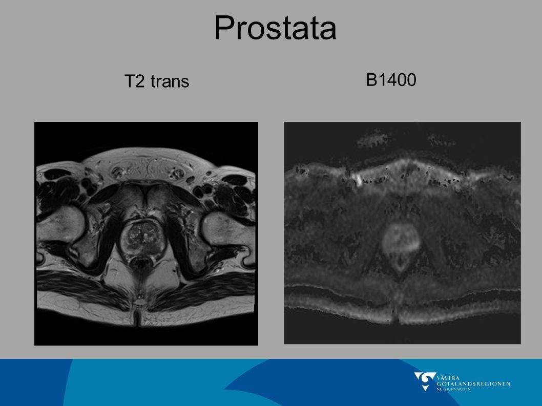 Prostata T2 trans B1400 Den vanliga prostata undersökningen
