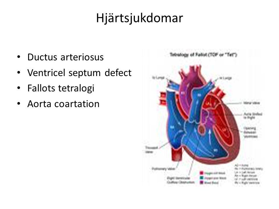 Hjärtsjukdomar Ductus arteriosus Ventricel septum defect