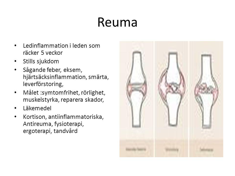Reuma Ledinflammation i leden som räcker 5 veckor Stills sjukdom