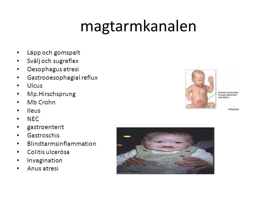 magtarmkanalen Läpp och gomspalt Svälj och sugreflex Oesophagus atresi