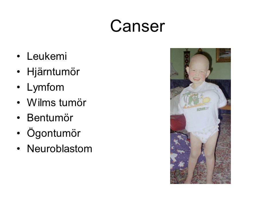Canser Leukemi Hjärntumör Lymfom Wilms tumör Bentumör Ögontumör