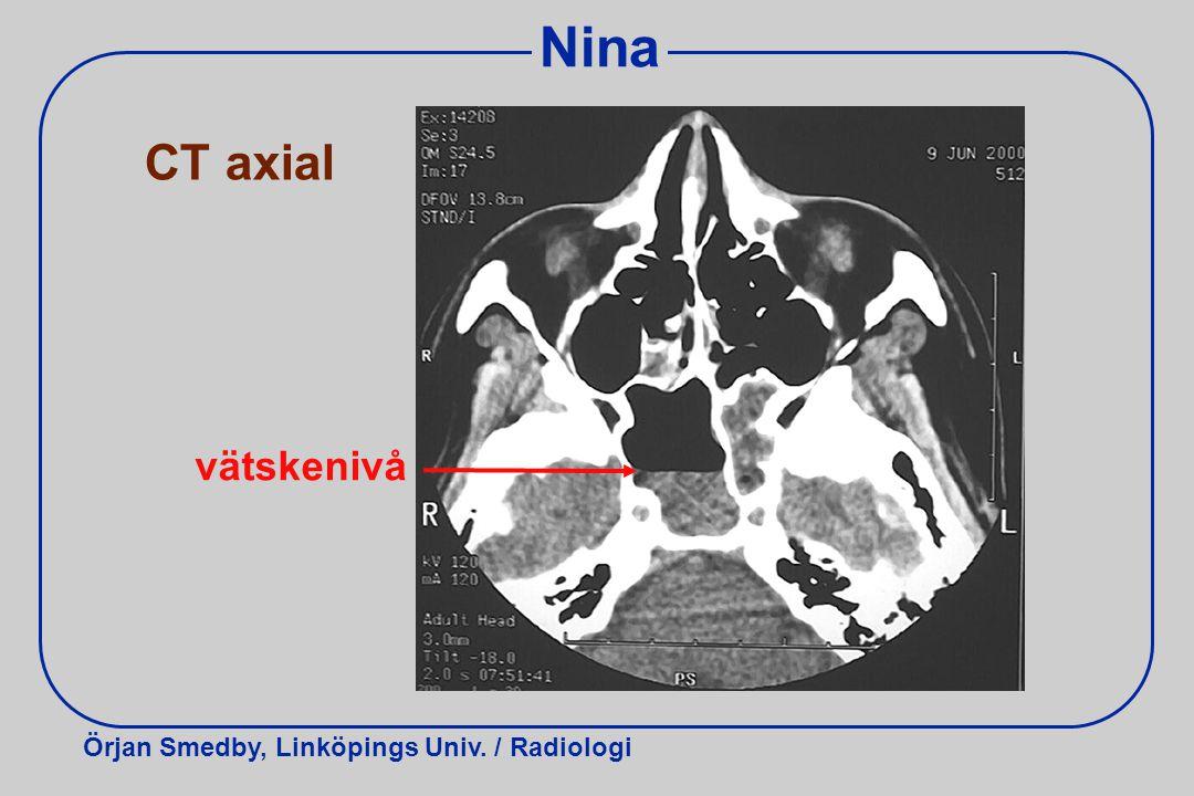 Nina CT axial vätskenivå Vätska lägger sig dorsalt.