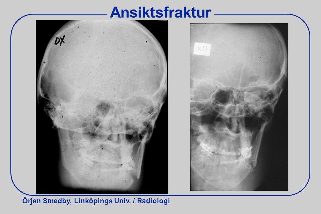Ansiktsfraktur Röntgen