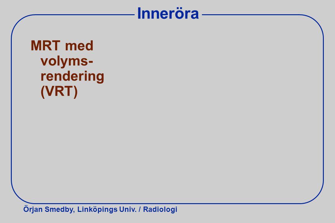Inneröra MRT med volyms-rendering (VRT)