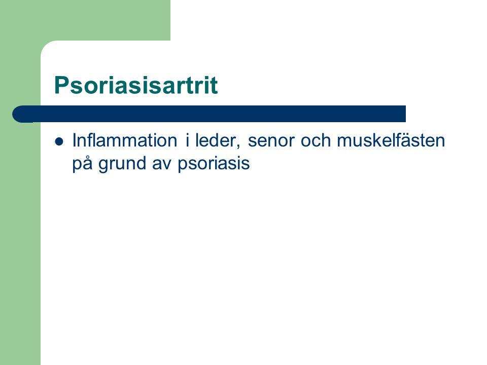 Psoriasisartrit Inflammation i leder, senor och muskelfästen på grund av psoriasis.