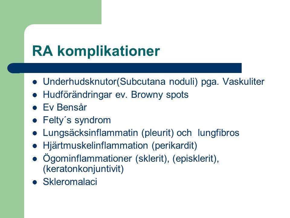 RA komplikationer Underhudsknutor(Subcutana noduli) pga. Vaskuliter