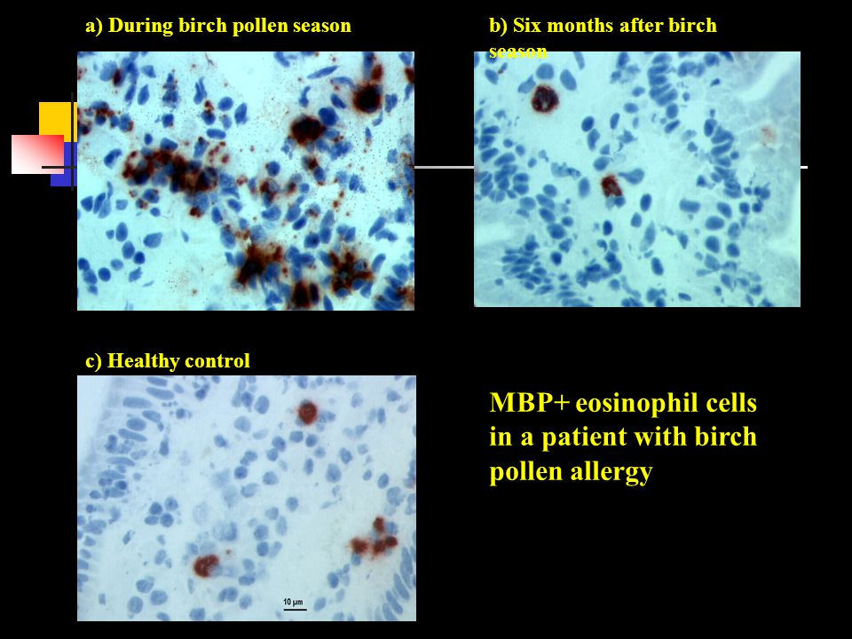 MBP+ eosinophil cells in a patient with birch pollen allergy