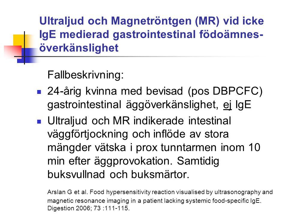Ultraljud och Magnetröntgen (MR) vid icke IgE medierad gastrointestinal födoämnes- överkänslighet