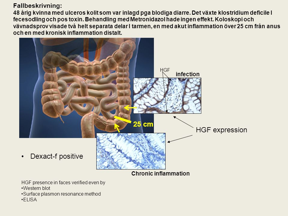 25 cm HGF expression Dexact-f positive Fallbeskrivning: