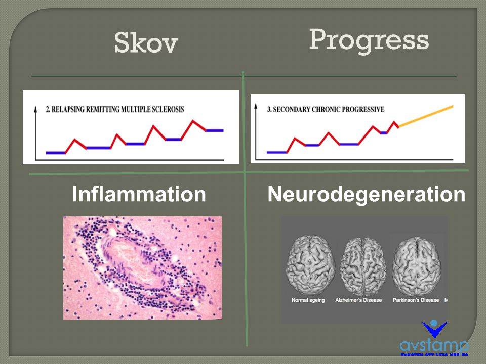 Progress Skov Inflammation Neurodegeneration