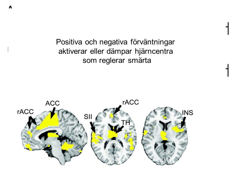 Positiva och negativa förväntningar aktiverar eller dämpar hjärncentra