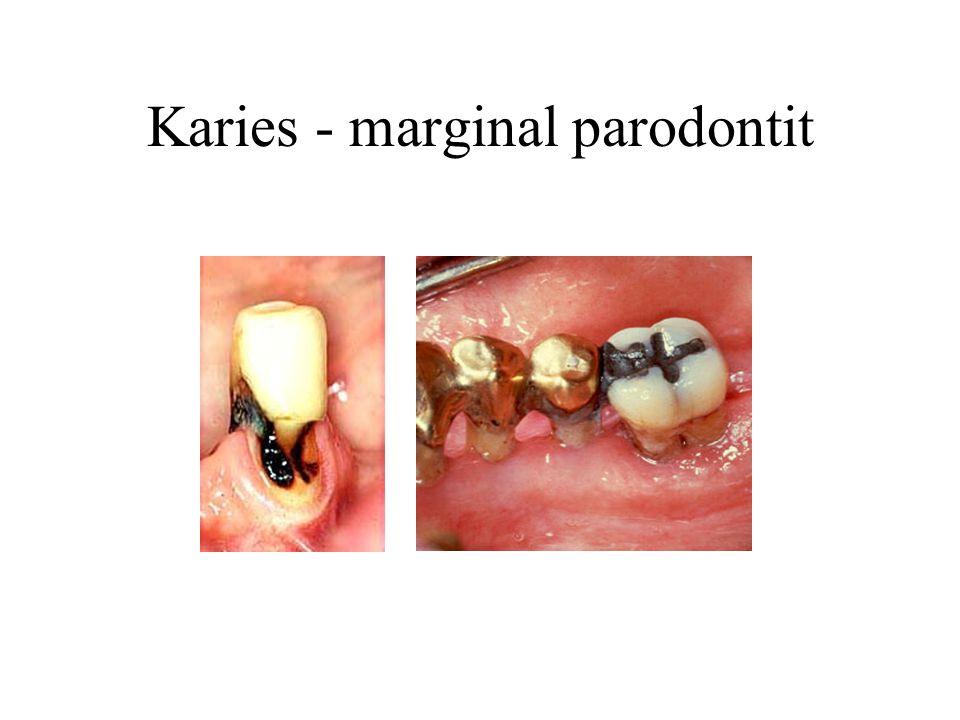 Karies - marginal parodontit