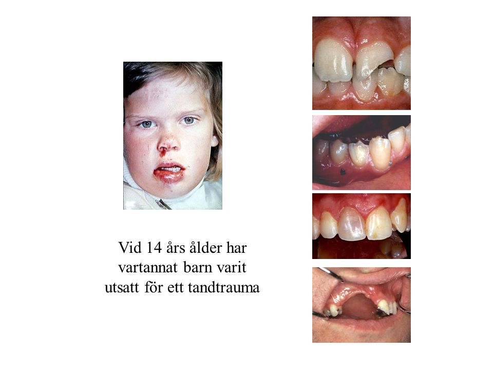 utsatt för ett tandtrauma