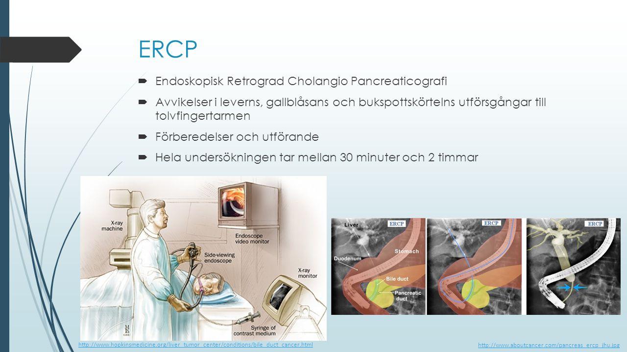 ERCP Endoskopisk Retrograd Cholangio Pancreaticografi