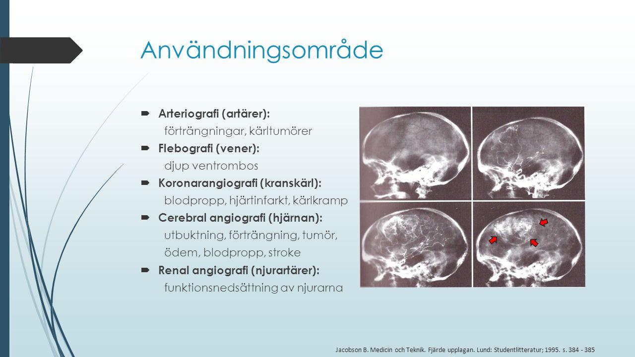 Användningsområde Arteriografi (artärer): förträngningar, kärltumörer