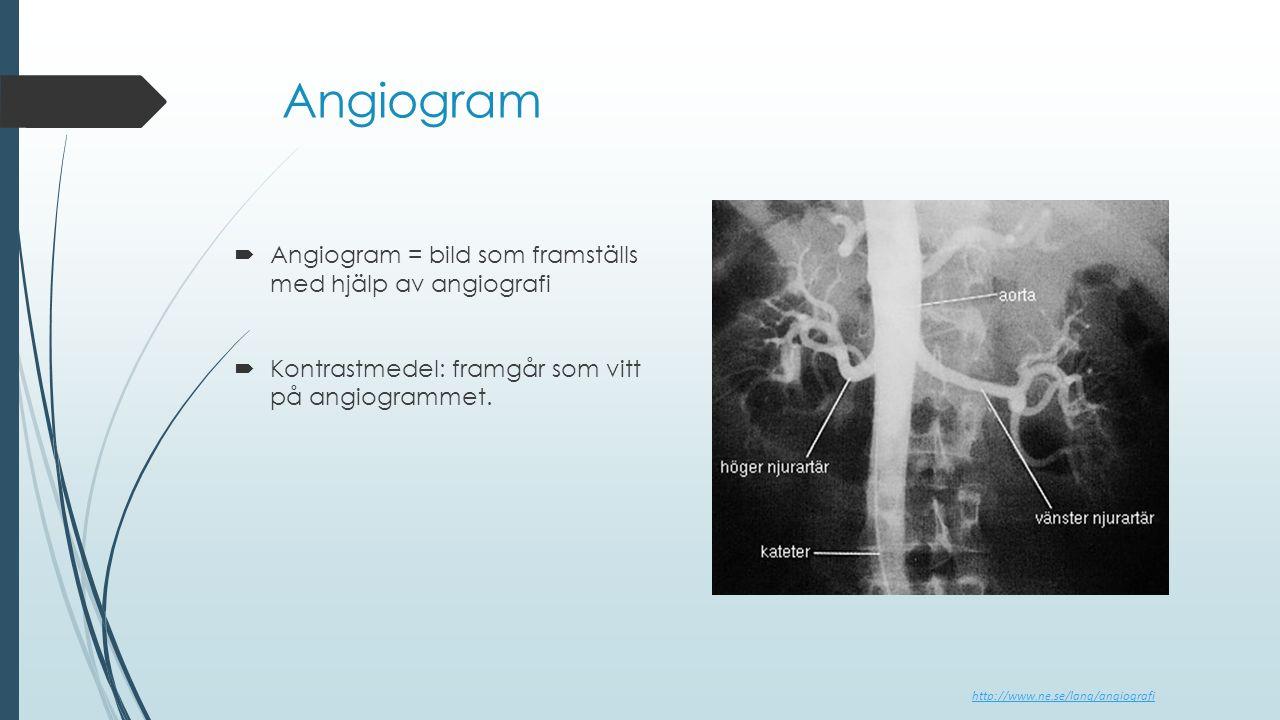 Angiogram Angiogram = bild som framställs med hjälp av angiografi