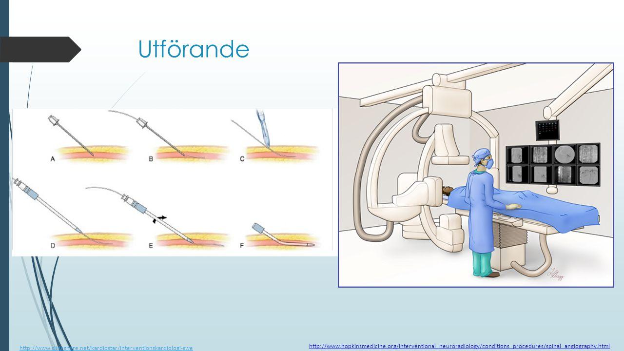 Utförande http://www.slideshare.net/kardiostar/interventionskardiologi-swe.
