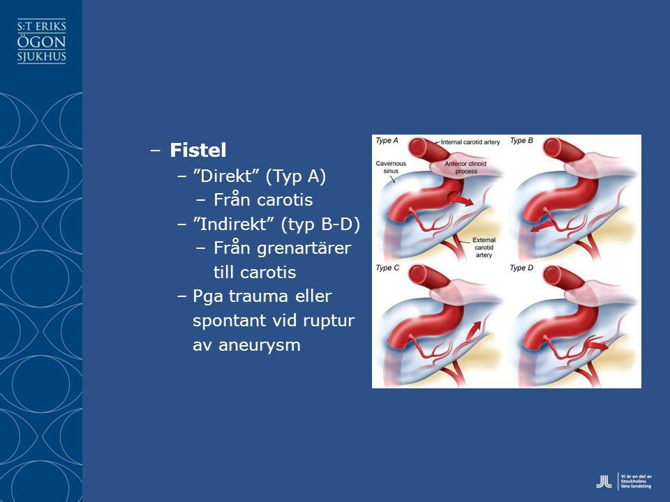 Fistel Direkt (Typ A) Från carotis Indirekt (typ B-D)