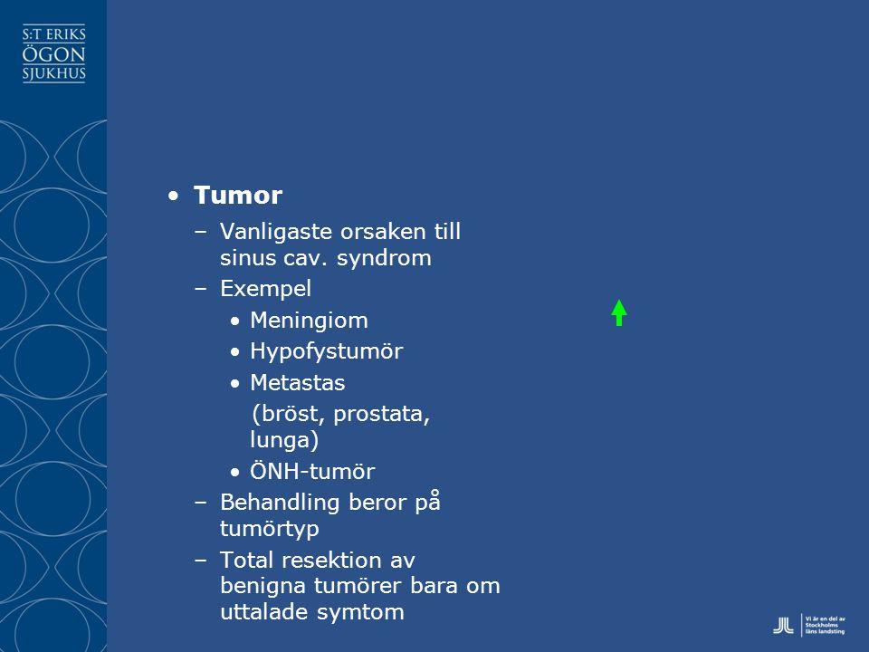 Tumor Vanligaste orsaken till sinus cav. syndrom Exempel Meningiom