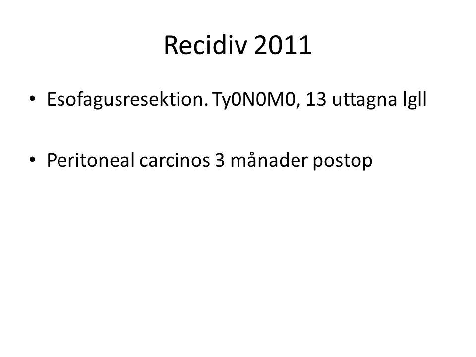 Recidiv 2011 Esofagusresektion. Ty0N0M0, 13 uttagna lgll