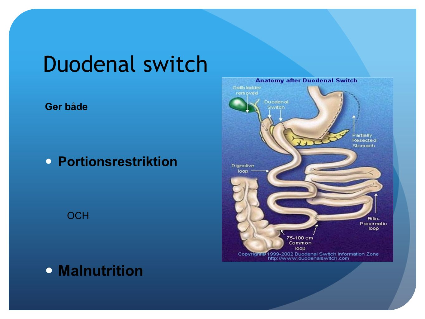Duodenal switch Ger både Portionsrestriktion OCH Malnutrition