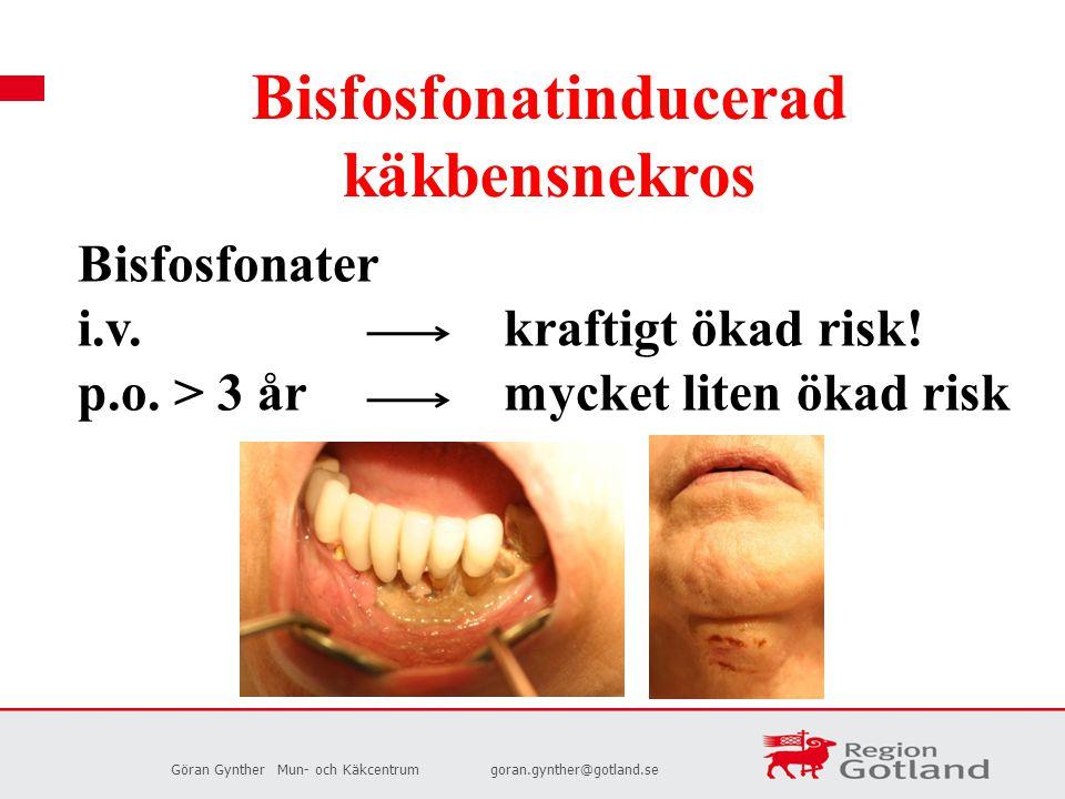 Bisfosfonatinducerad käkbensnekros