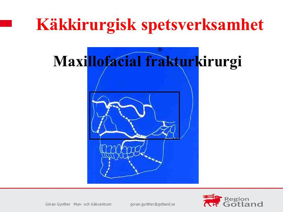 Maxillofacial frakturkirurgi