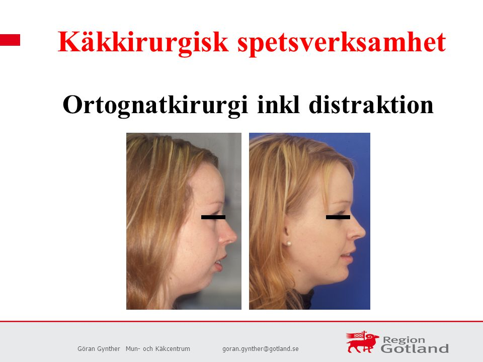 Ortognatkirurgi inkl distraktion