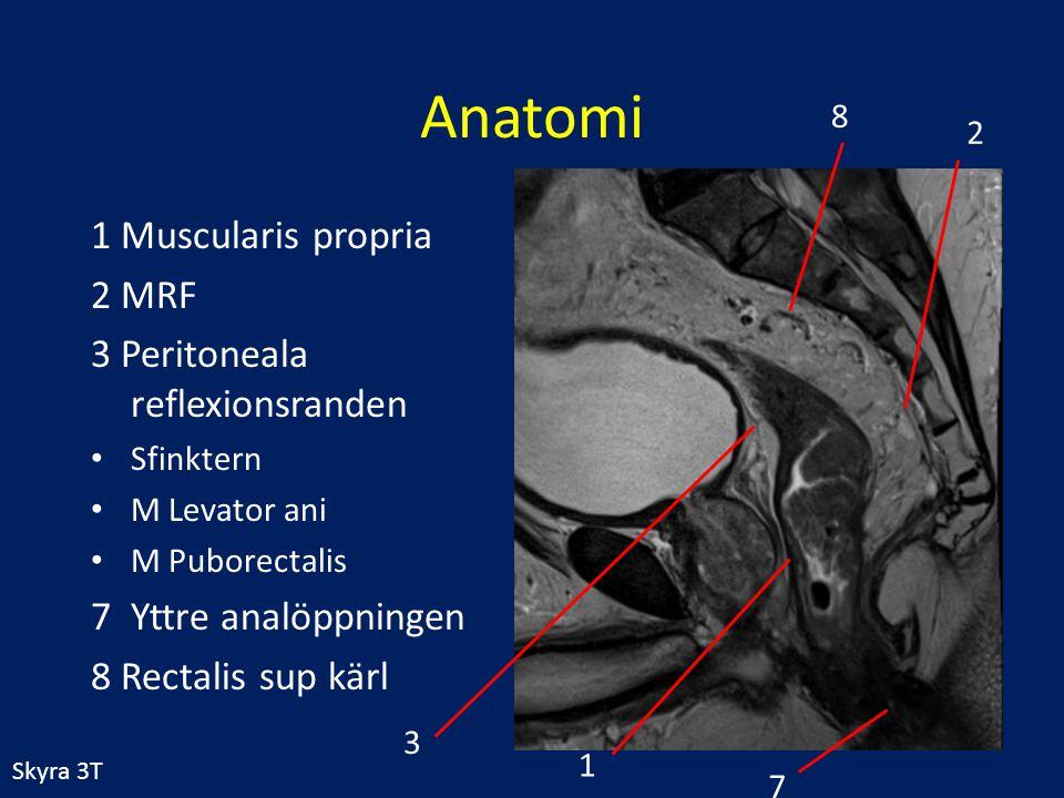 Anatomi 1 Muscularis propria 2 MRF 3 Peritoneala reflexionsranden