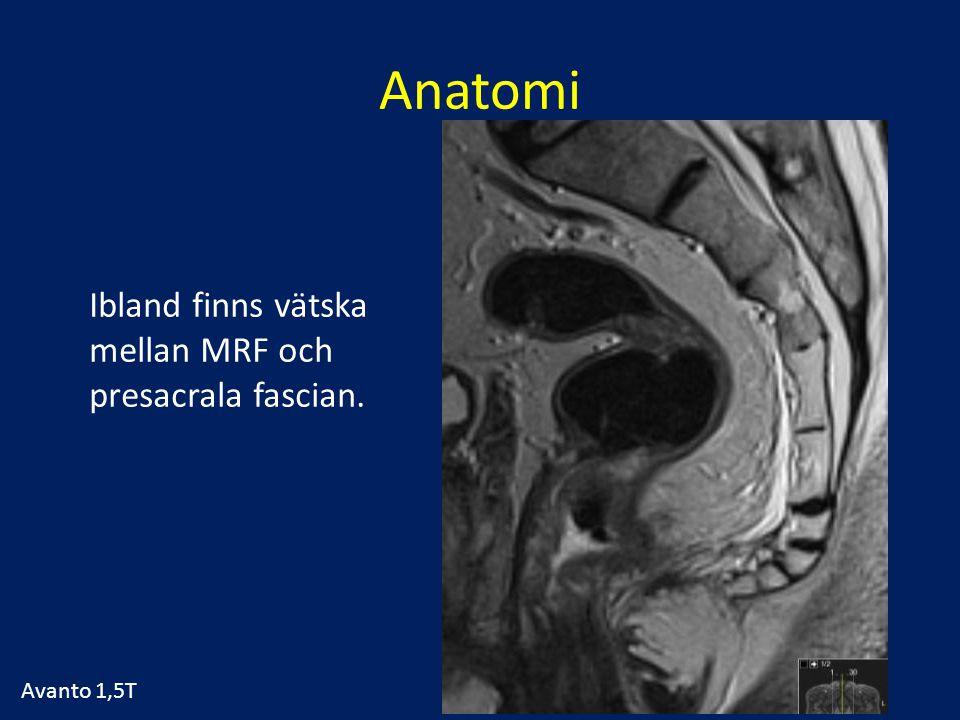 Anatomi Ibland finns vätska mellan MRF och presacrala fascian.