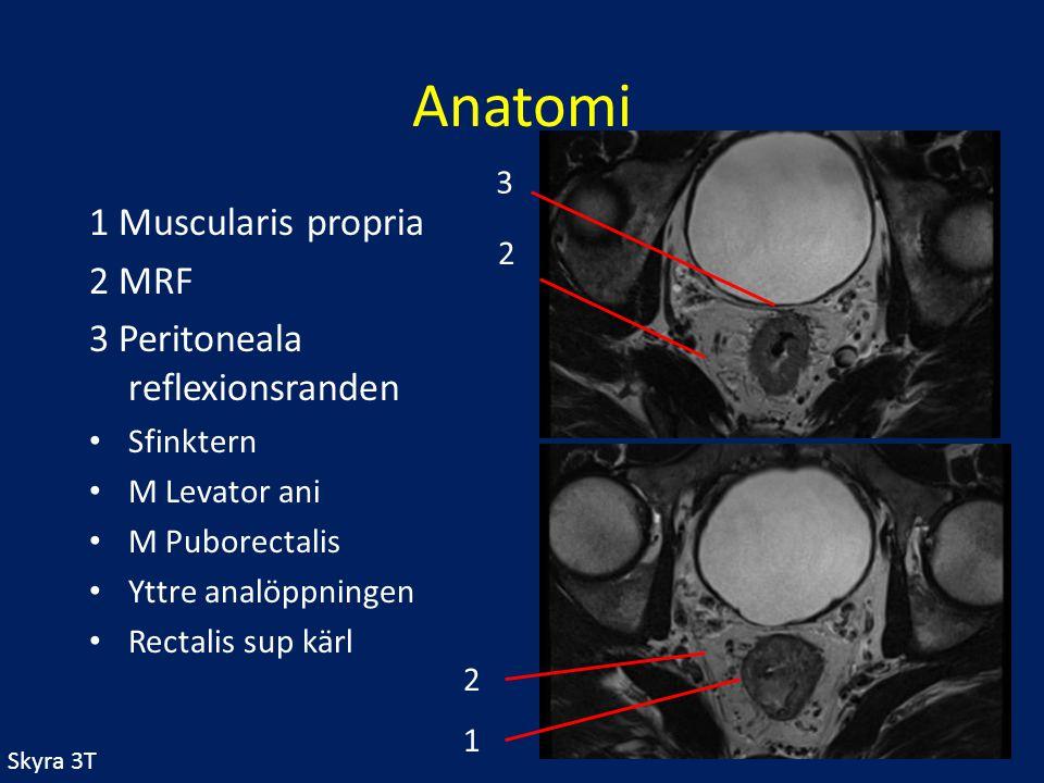 Anatomi 1 Muscularis propria 2 MRF 3 Peritoneala reflexionsranden 3 2