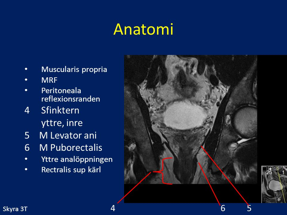 Anatomi Sfinktern yttre, inre 5 M Levator ani 6 M Puborectalis 4 6 5