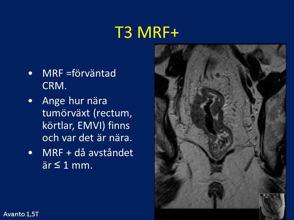 T3 MRF+ MRF =förväntad CRM.