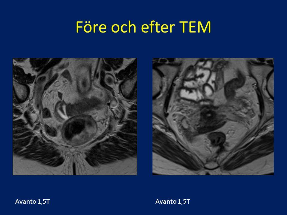 Före och efter TEM Fall 46 T1 sm2 Avanto 1,5T Avanto 1,5T