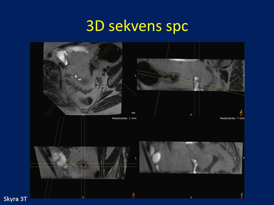 3D sekvens spc Skyra 3T Fall 42
