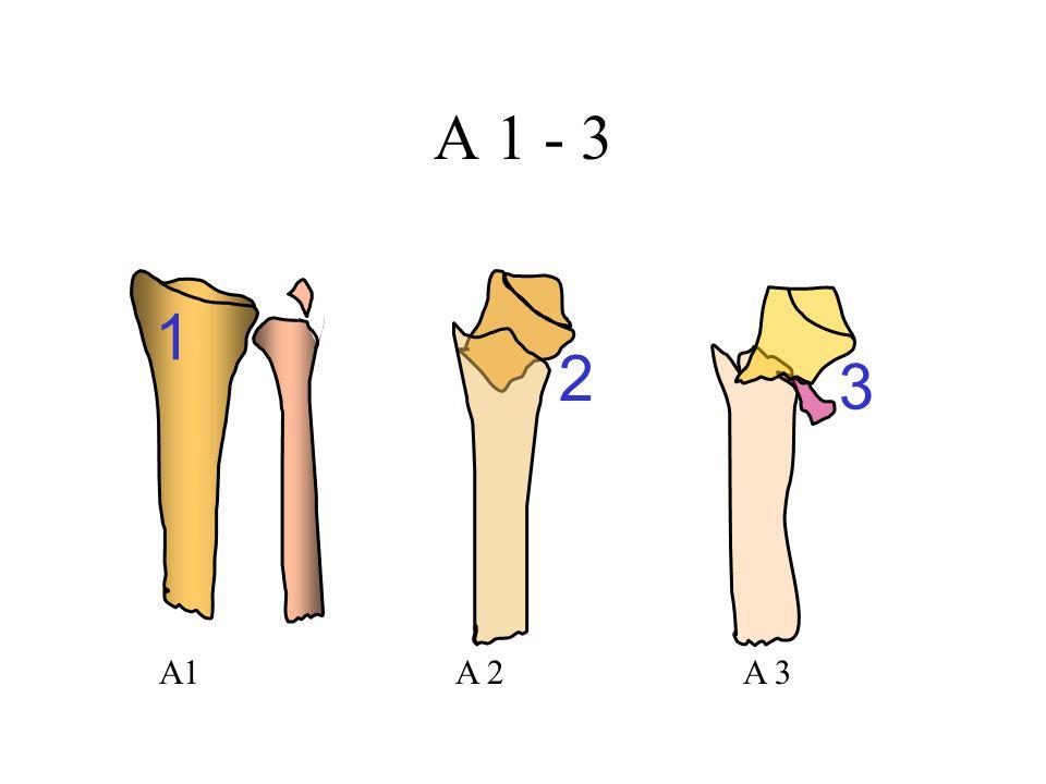 A 1 - 3 1 2 3 A1 A 2 A 3