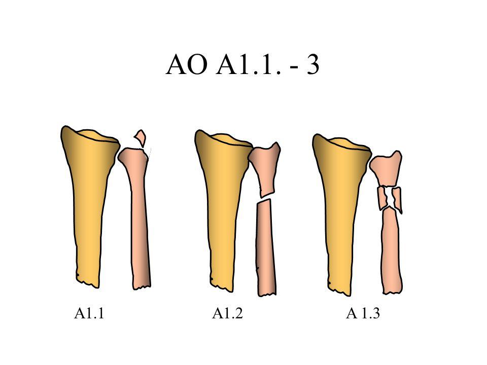 AO A1.1. - 3 A1.1 A1.2 A 1.3