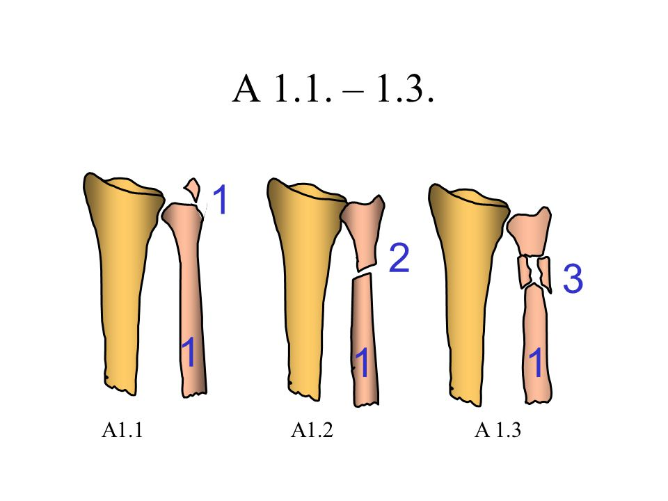 A 1.1. – 1.3. 1 2 3 1 1 1 A1.1 A1.2 A 1.3