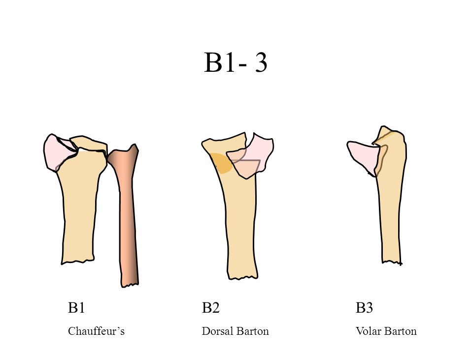 B1- 3 B1 Chauffeur's B2 Dorsal Barton B3 Volar Barton