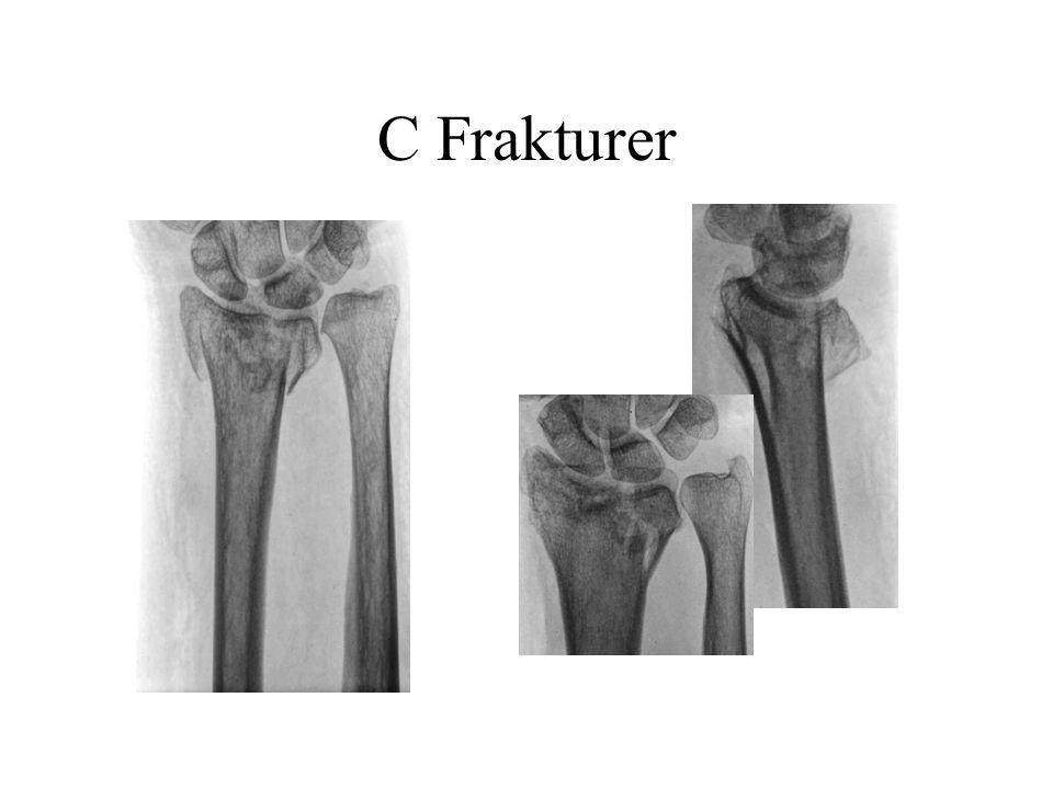 C Frakturer