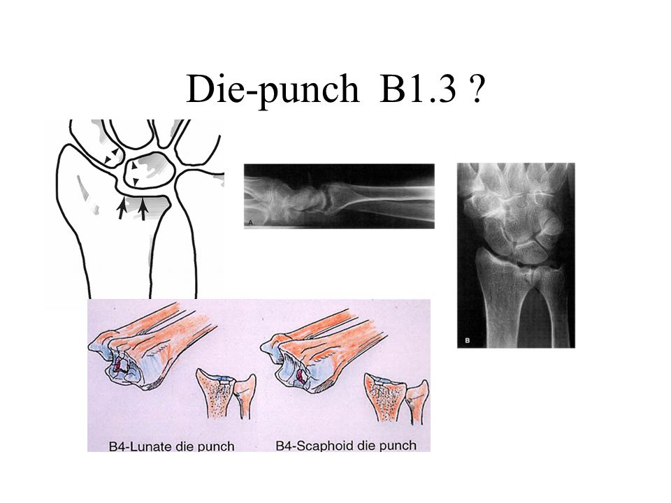 Die-punch B1.3