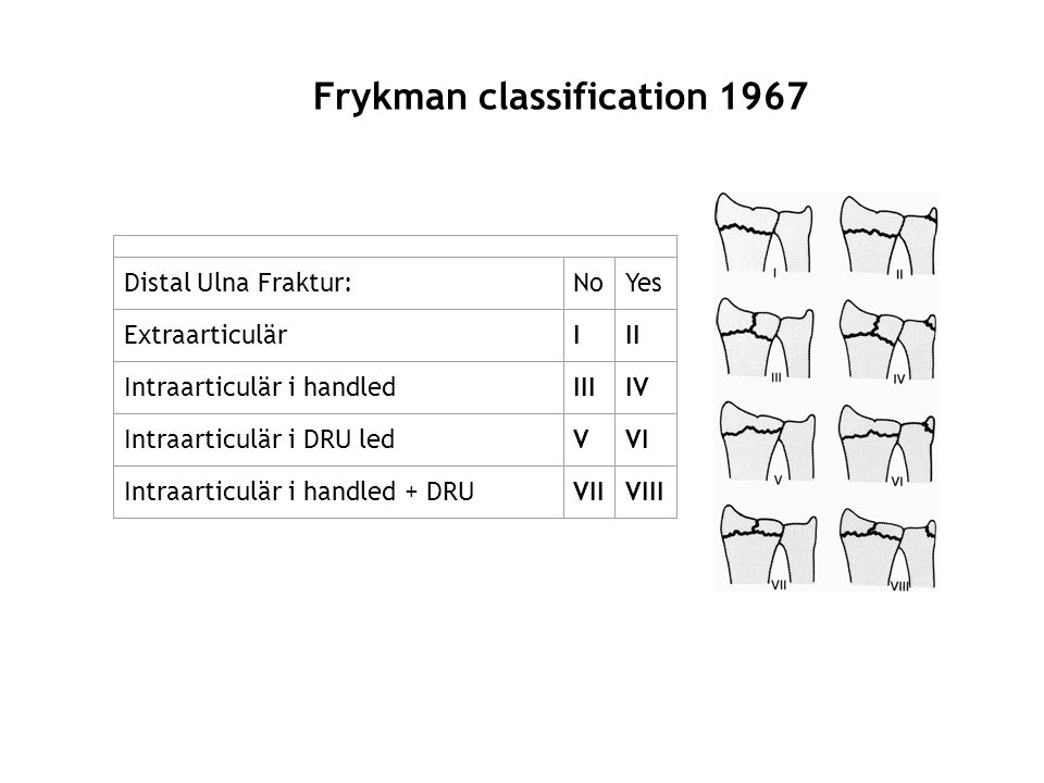 Frykman classification 1967
